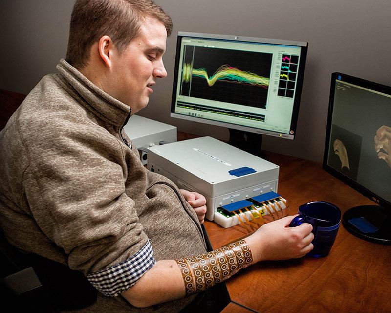 Neurobridge: la paralisi motoria può essere superata