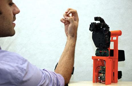 Protesi-Robot