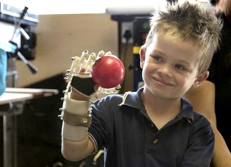 bimbo-protesi-mano-stampa3d